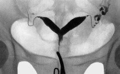 Возможна ли беременность при двурогой и седловидной матке?