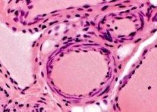 Обнаружена новая сеть лимфососудов